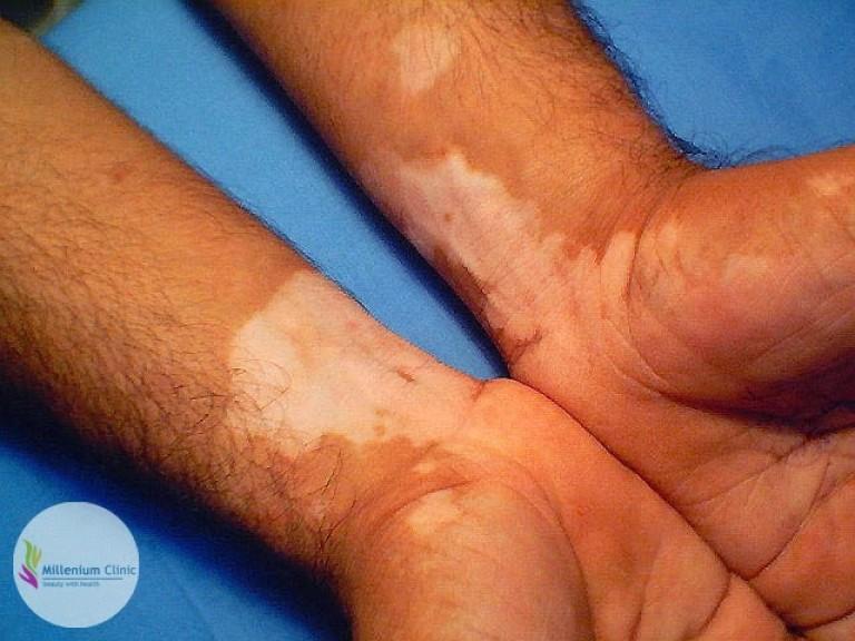 vitiligo-vulgaris-millenium-clinic-vapi