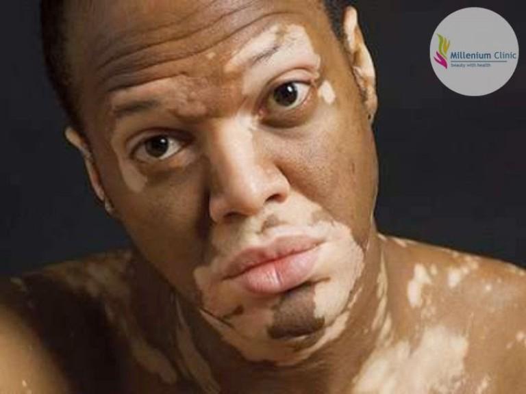 acrofacial-vitiligo-millenium-clinic-vapi