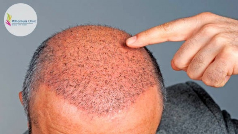 hair-transplant-hair-implant-millenium-clinic-Vapi-Gujarat-India