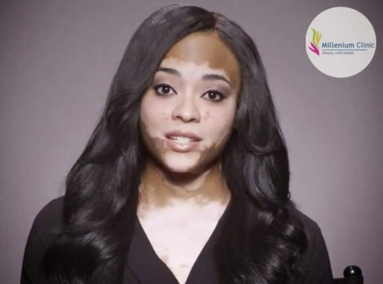 vitiligo-millenium-clinic-vapi (1)