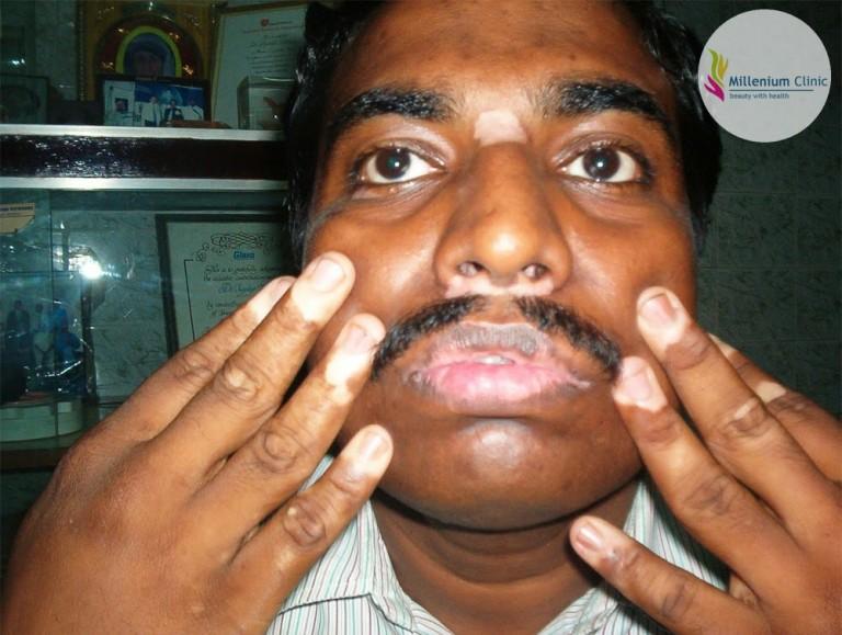 lip-tip-vitiligo-millenium-clinic-vapi